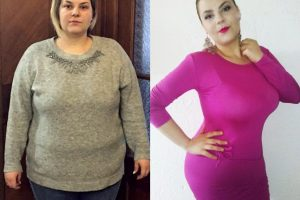 Bariatric-surgery-before-and-after11