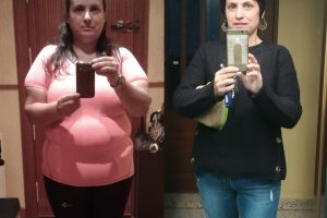 Bariatric-surgery-before-and-after19