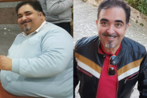 bariatric-before-after-3-2