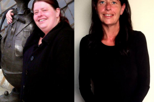 bariatric-before-after-6